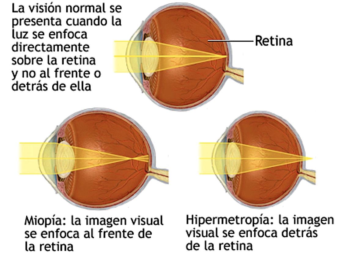 miopía astigmatismo)